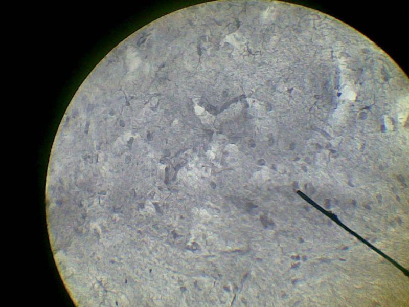 Микроглия фото