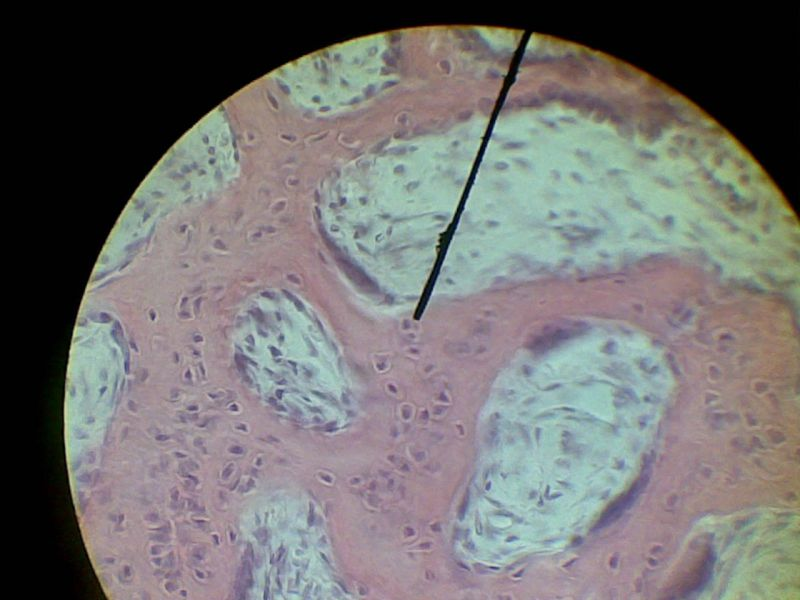 Остеогенез фото