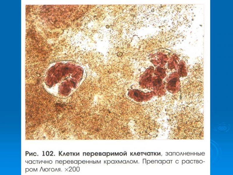 физической деятельности йодофильная флора патологическая в кале у взрослого того, чтобы выбрать