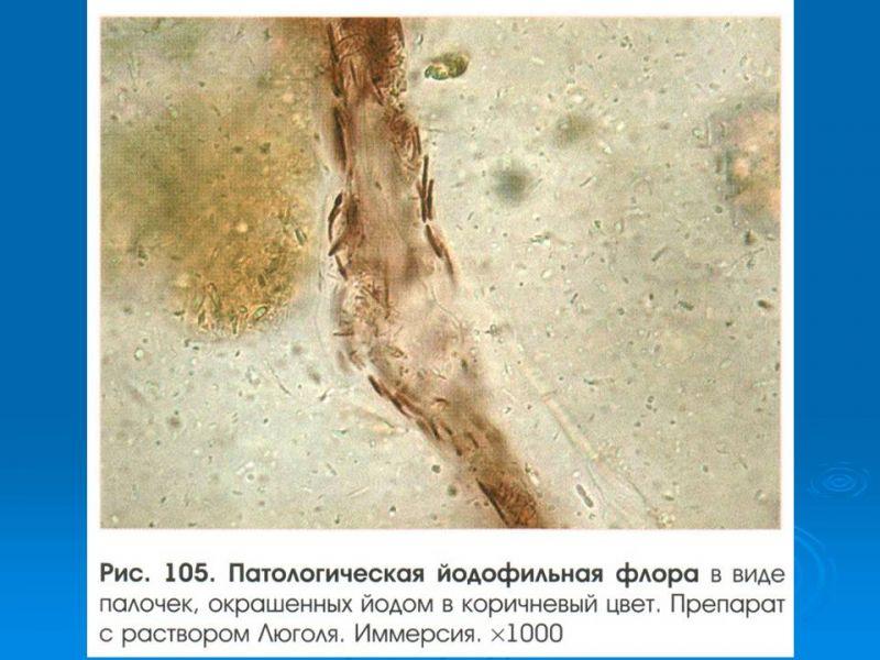 поразило йодофильная флора патологическая в кале у взрослого идеале, стоит приобрести
